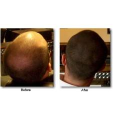 DERMMATCH 40 g, (izaberite boju) vodootporan zgušćivač za kosu